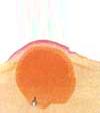 膿疱性座瘡